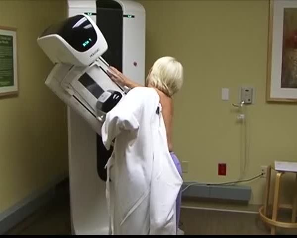 OSF Breast Cancer Mammogram Study