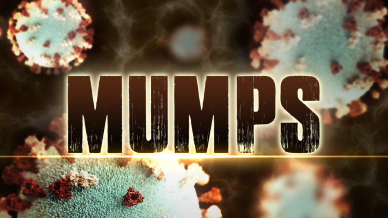 mumps_1490795916707.jpg